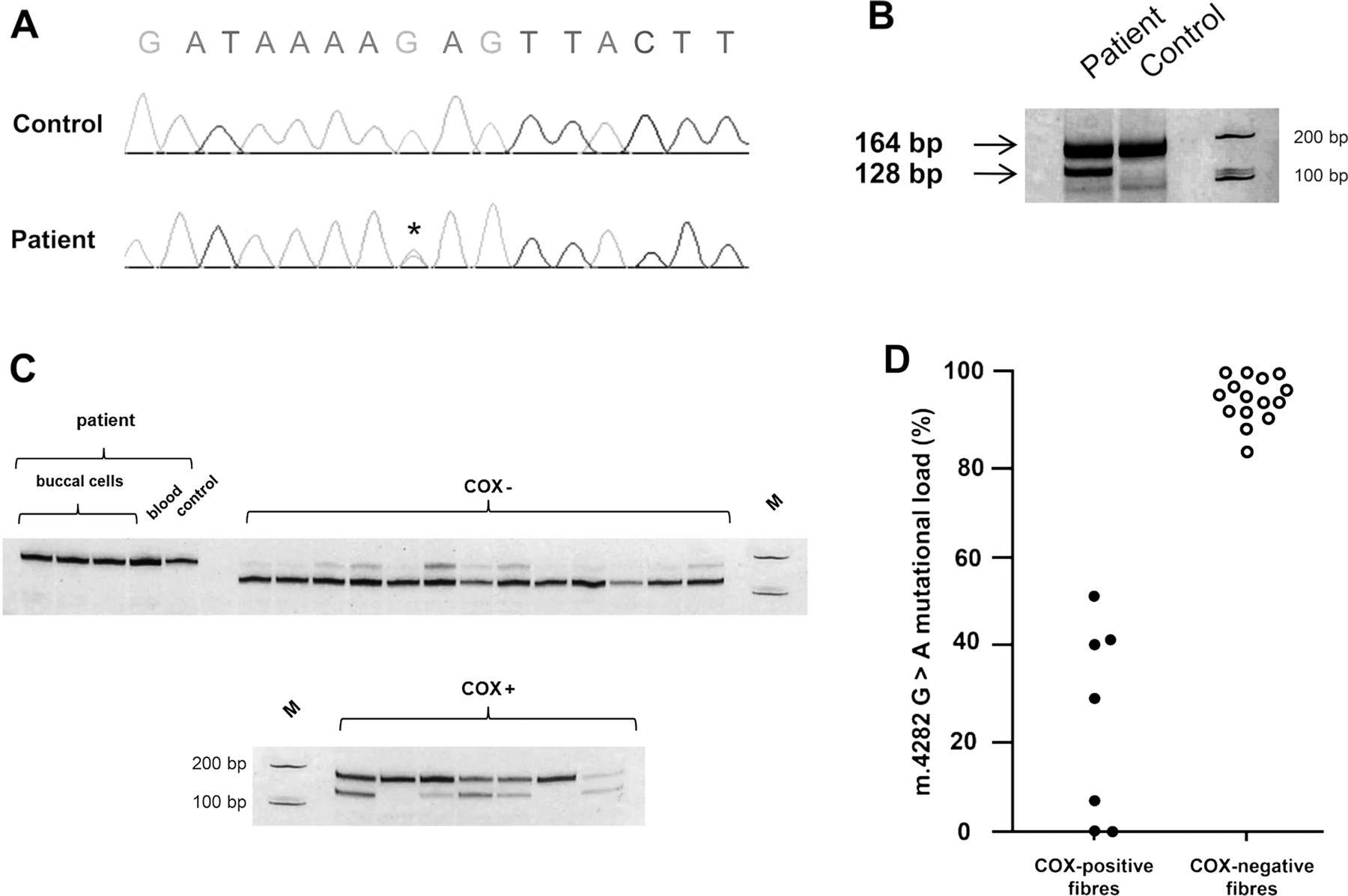 novel mitochondrial trnaile m 4282a g gene mutation leads to chronic