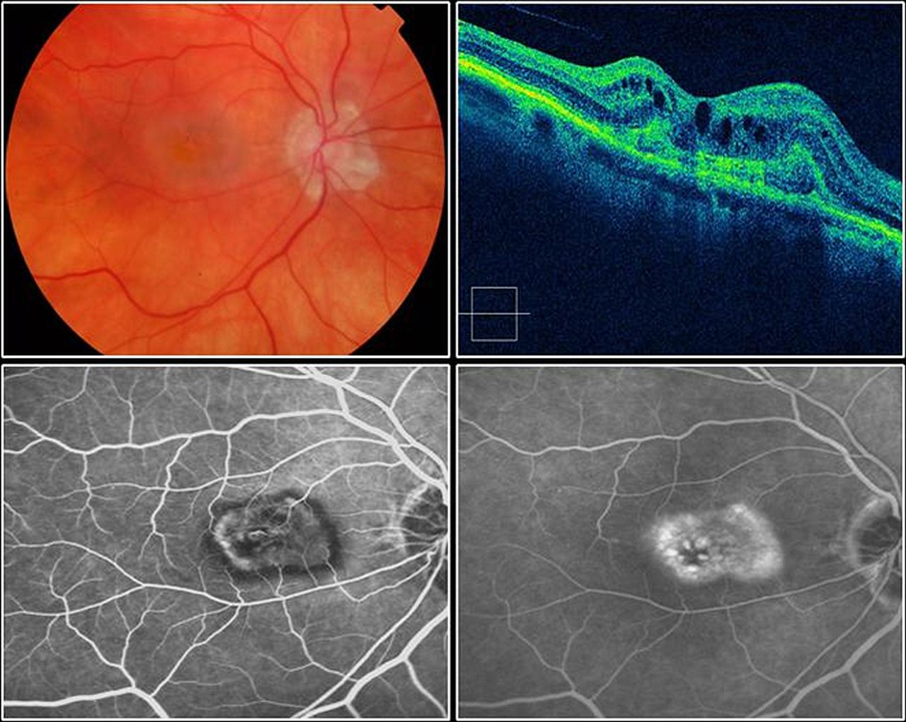 Guidelines For The Management Of Neovascular Age Related Macular Volcano Diagram Shield Volcanojpg Download Figure
