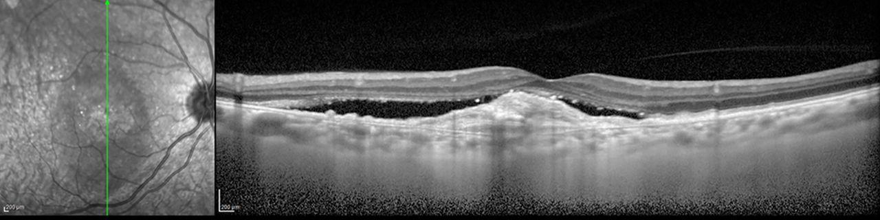 Resultado de imagen de oct macular degeneration