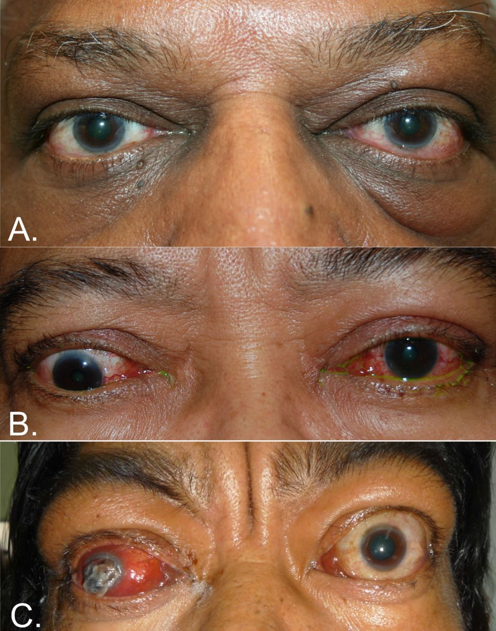 Thyroid Eye Disease A Southeast Asian Experience British