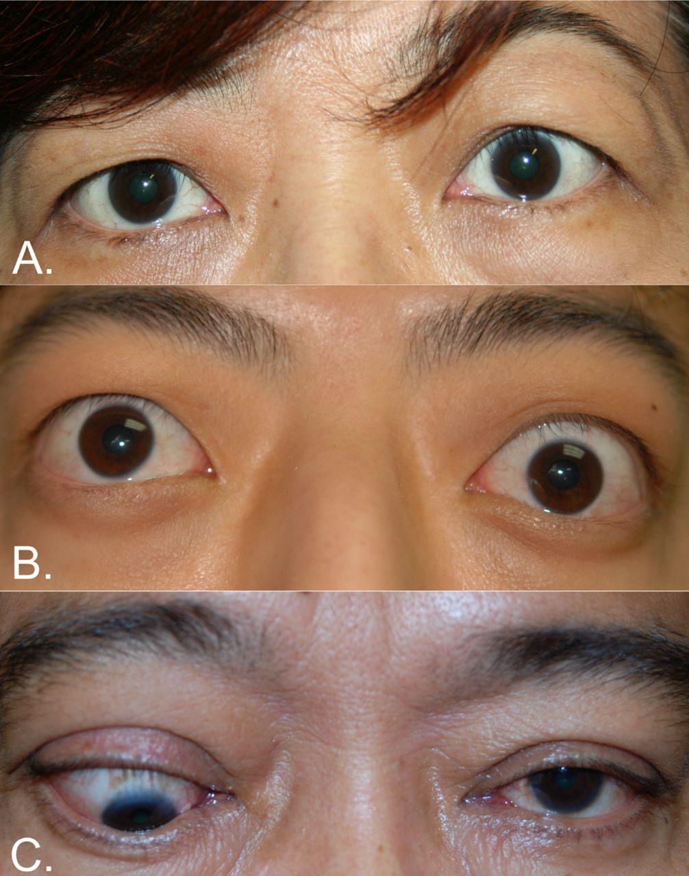 Thyroid Eye Disease A Southeast Asian Experience British