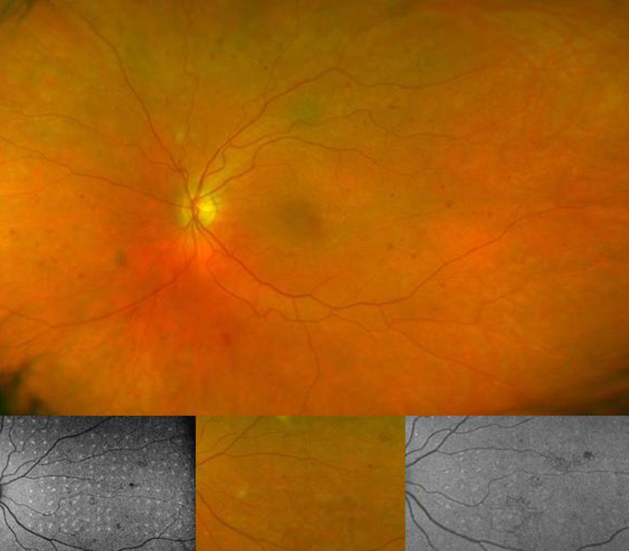 Pilot Randomised Clinical Trial Of Pascal TargETEd Retinal Versus