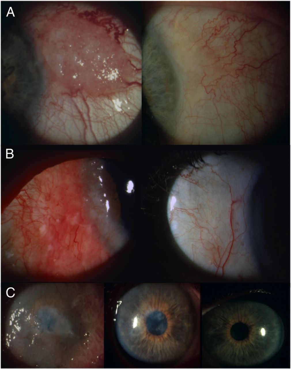 treating conjuctival ocular surface squamous neoplasia Clinical presentation of ocular surface squamous there is a trend toward treating conjunctival lesions suspected to be ocular surface squamous neoplasia.