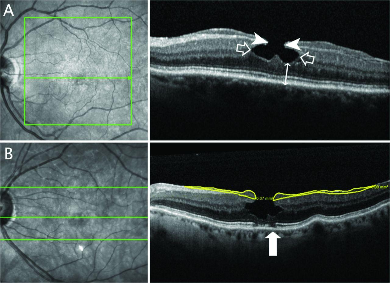 progression of lamellar hole