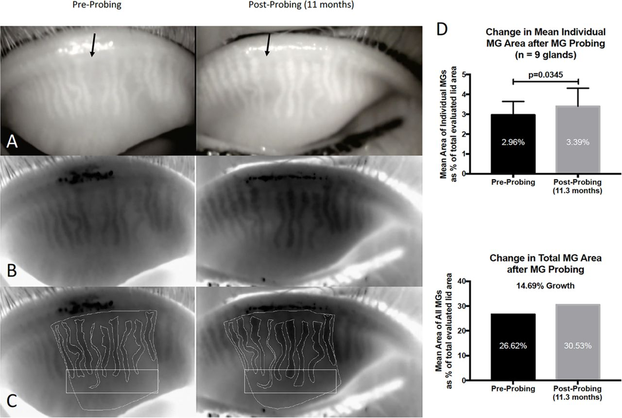 growth of meibomian gland tissue after intraductal