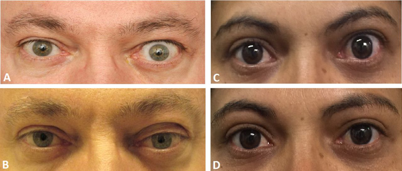 Non Surgical Treatment For Eyelid Retraction In Thyroid