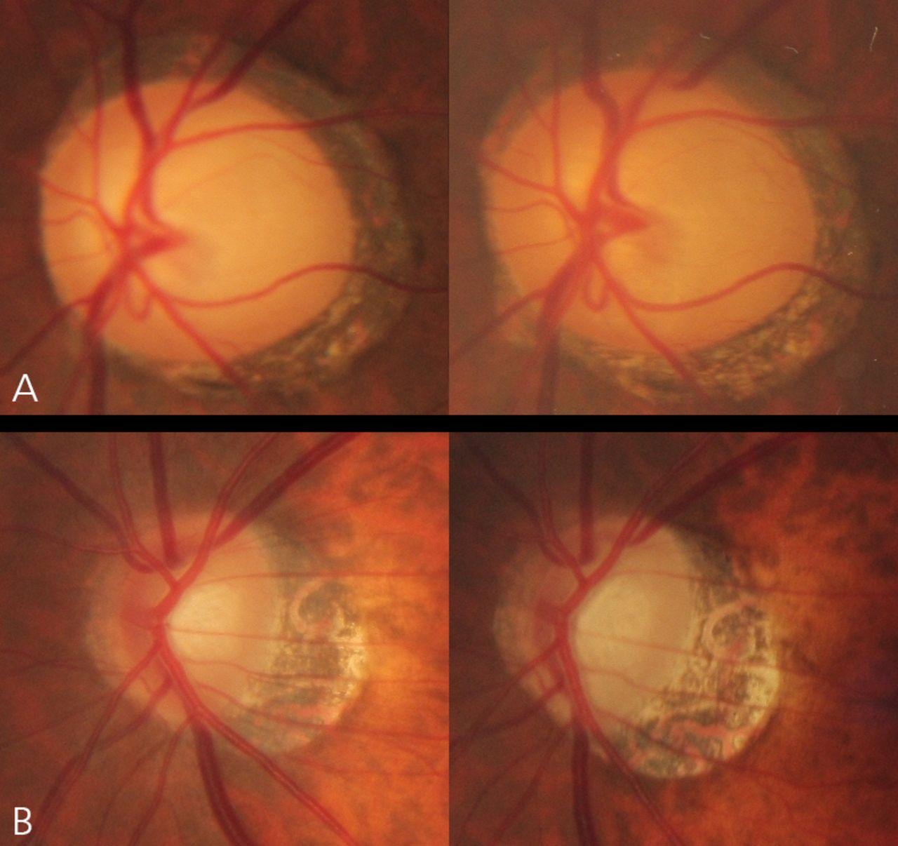 progressive change in peripapillary atrophy in myopic