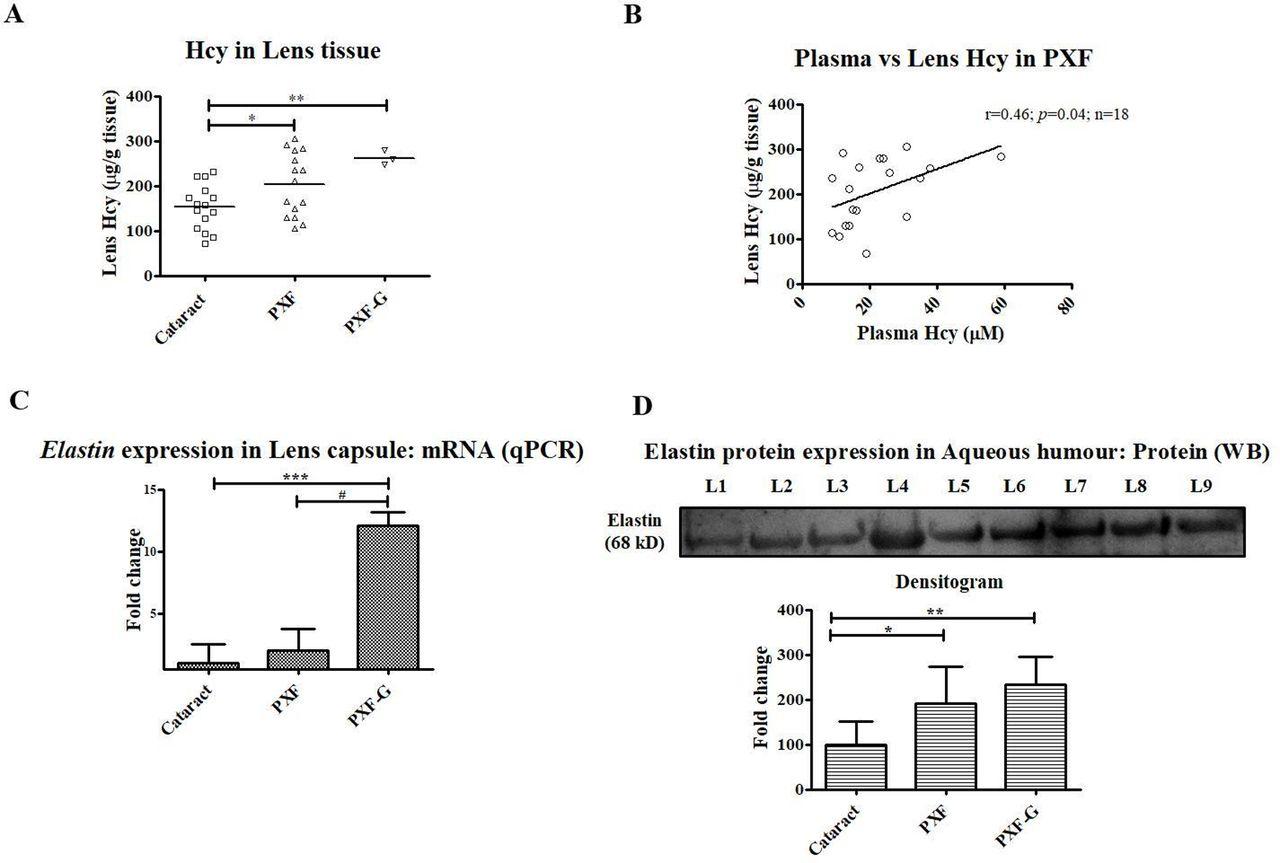 Elastin modulation and modification by homocysteine: a key