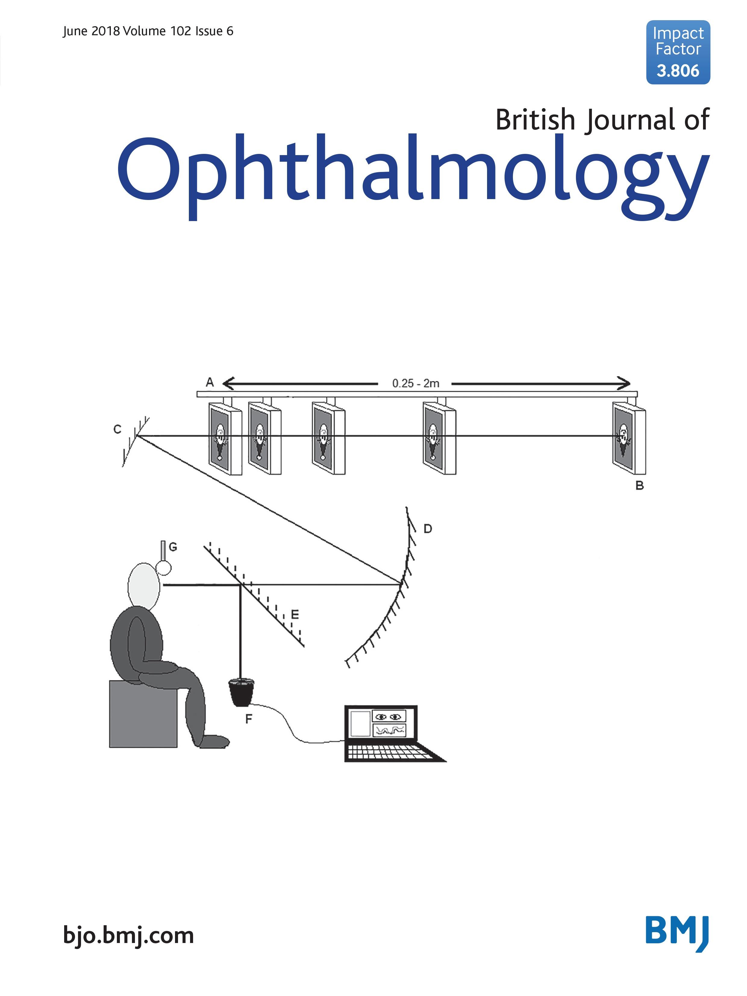 Non Invasive Method Of Monitoring Retinal Vasculitis In Patients Circuit Diagram Glucose Meter With Birdshot Chorioretinopathy Using Optical Coherence Tomography British Journal