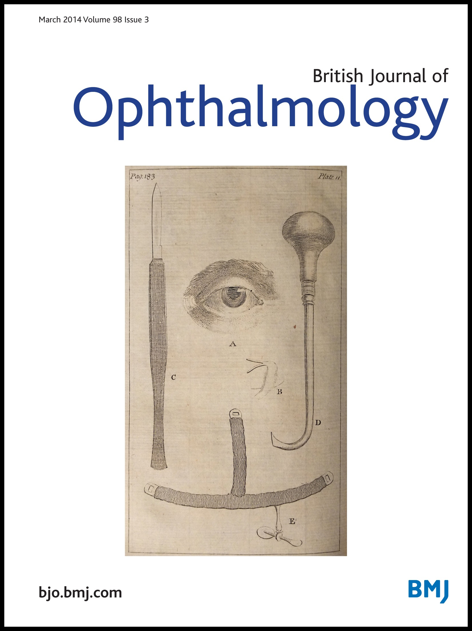 Ophthalmic statistics note 1: unit of analysis | British Journal of