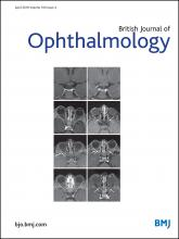 British Journal of Ophthalmology: 100 (4)
