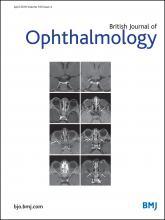 British Journal of Ophthalmology: 100 (4)