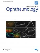 British Journal of Ophthalmology: 101 (4)