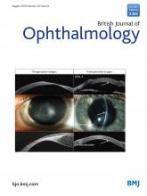 British Journal of Ophthalmology: 102 (8)