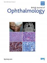 British Journal of Ophthalmology: 104 (3)