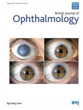 British Journal of Ophthalmology: 105 (8)