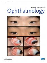 British Journal of Ophthalmology: 99 (8)